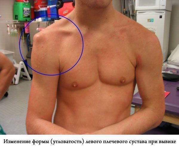 боль при вывихе плечевого сустава